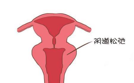 产后新妈妈 什么是恶露及其恢复进程