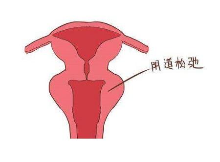 女人用缩阴产品管用吗?看完不后悔!